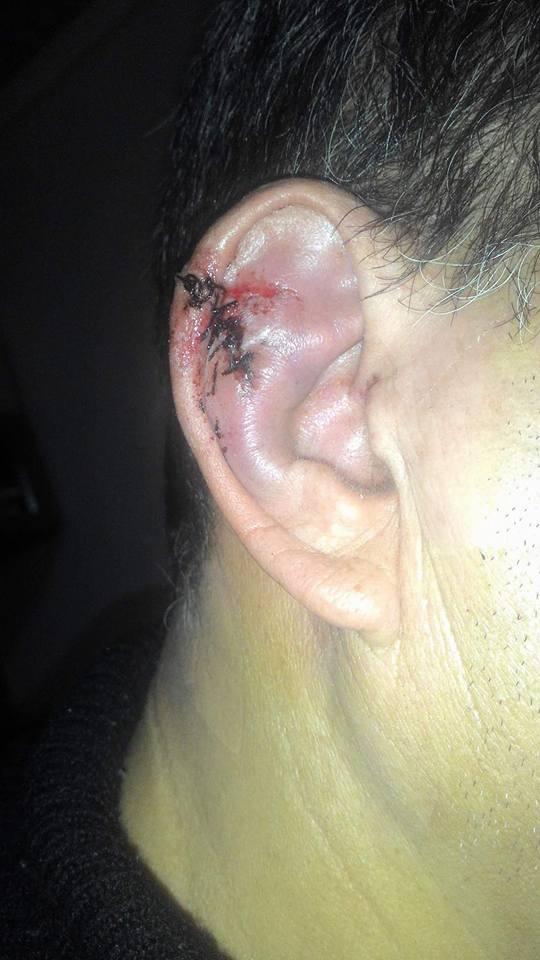 Турат Акимов рана головы